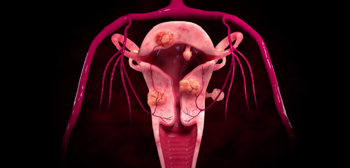 Криолиполиз при миоме матки